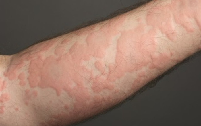 urticaria tests allergies